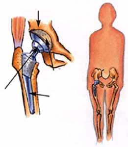Klubo sanario skausmo gydymas naturaliomis priemonėmis